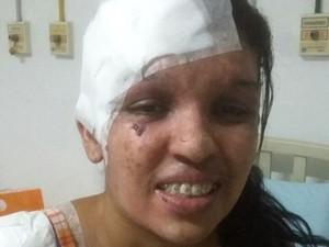 Aline com parte da testa e ombro cobertos após cirurgia (Foto: Arquivo Pessoal/ Vanessa Cristina Reis)