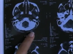 Doença foi diagnosticada em 2015 (Foto: Reprodução/RBS TV)