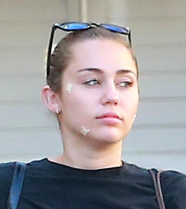 Que dó! Miley Cyrus aparece com curativos no rosto