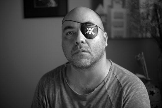 O fotógrafo Alex Silveira, que perdeu quase toda a visão do olho esquerdo após tiro de bala de borrcha em protesto (Foto: Sérgio Silva/Divulgação)