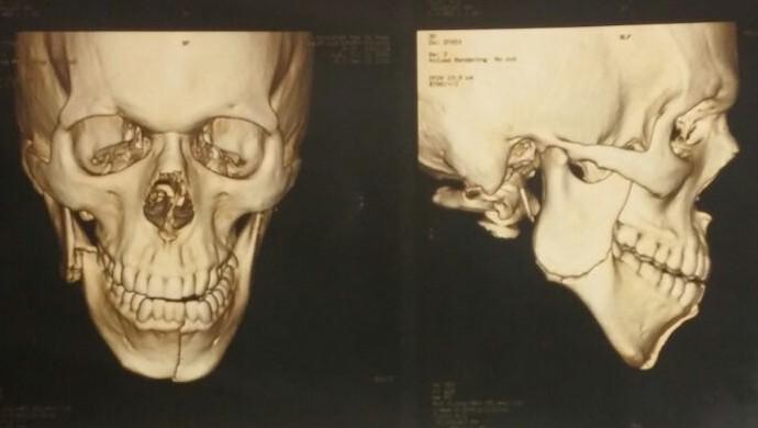 grêmio Miller Bolaños raio-x (Foto: Reprodução)