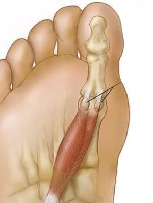 Sesamóides Eu atleta ortopedista ana paula simões ossos (Foto: Reprodução / Internet)