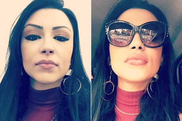Jenny Miranda preenchimento labial (Foto: C O assessoria)