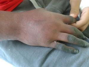 Braço do paciente começou a necrosar após injeções (Foto:  Fabiana Amaro/Arquivo Pessoal)
