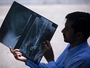 Em abril de 2012, o paquistanês Safdar Ali Shah passou por exames por causa das constantes dores abdominais. Um raio-X descobriu o motivo da dor: ele vivia com uma pinça hemostática no corpo. O objeto foi deixado no corpo de Shah por uma equipe médica dur (Foto: Akhtar Soomro/Reuters)