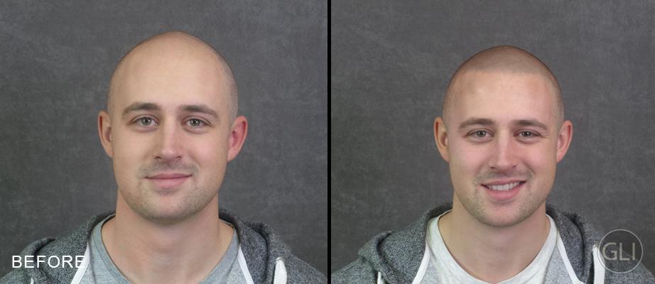 """O antes e o depois da """"tattoo de cabelo"""" (Foto: Divulgação)"""