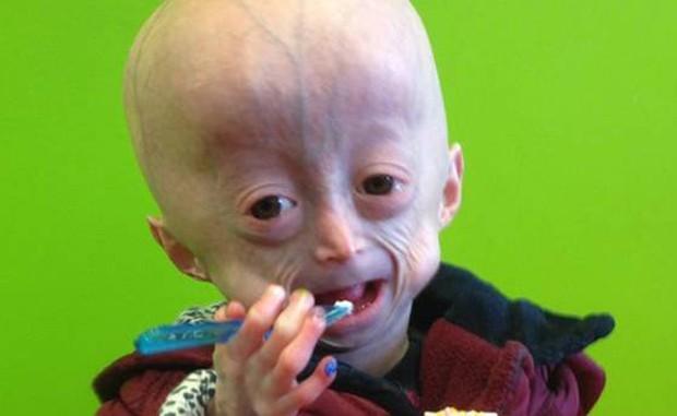 Lucy Parke sofria da Síndrome de Hutchinson Gilford Progeria (Foto: Reprodução)