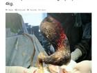 Médicos removem bola de cabelos de estômago de jovem no Quirguistão