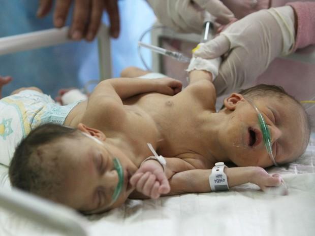 Duas meninas siamesas nascidas há 3 dias em Hebron, Cisjordânia, aguardam que o governo da Arábia Saudita se responsabilize pelo caso e diga se será necessária uma cirurgia para separá-las. As gêmeas Iman e Amani compartilham um estômago e dois corações. (Foto: Hazem Bader/AFP)