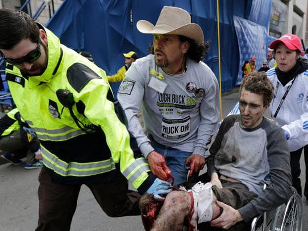 Jovem assistia maratona quando foi atingido por destroços. Ele teve as duas pernas amputadas e está internado no hospital de Massachussets. (Foto: Charles Krupa/Associated Press)
