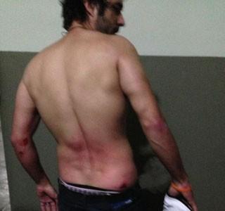 Thiago Earp foi ferido por balas de borracha no quadril, no braço e na perna (Foto: Arquivo Pessoal)
