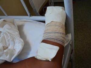 Na tentativa de estupro, os suspeitos deceparam a mão da vítima (Foto: Aline Paiva/ G1)