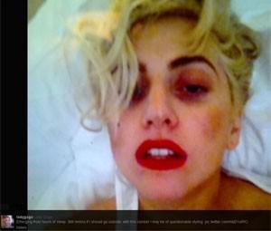 Lady Gaga após o acidente no show na Nova Zelândia (Foto: Reprodução/Twitter)