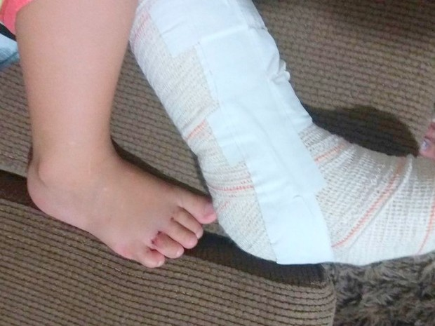 Menino de 2 anos machuca pé direito e hospital engessa esquerdo (Foto: Luciana da Cunha/Arquivo Pessoal)