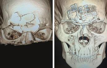 Evangelista Cyborg volta para casa após cirurgia no crânio; imagens fortes