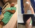 Capixaba Marcelo Guimarães opera o joelho e inicia sequência de cirurgias