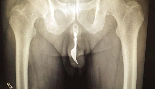 Homem passou por cirurgia depois que colocou garfo no pênis durante ato sexual bizarro (Foto: Reprodução/ International Journal of Surgery Case Reports)