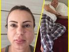 Stênio Garcia e Marilene Saade sofrem com caxumba: 'Não consigo falar'