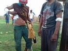 Confronto entre índios e fazendeiros em MS tem três feridos, diz Funai