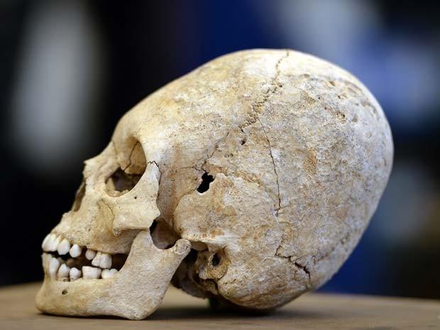 Crânio deformado do começo do século V é achado na França (Foto: FREDERICK FLORIN / AFP)