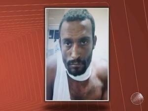 Turista inglês esfaqueado recebe alta; suspeito continua internado no HGE (Foto: Reprodução/TV Bahia)
