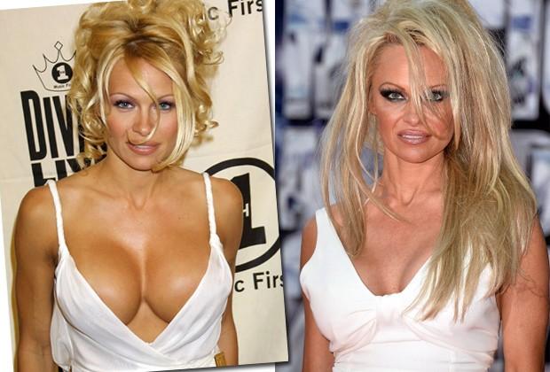 Pamela Anderson, que ficou famosa pelos seios fartos, também optou pela troca dos silicones (Foto: Getty Images)