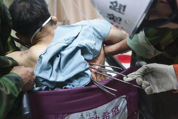 Sete varas de metal se cravaram no tronco do operário de construção civil chinês Zheng (Foto: China Daily/Reuters)