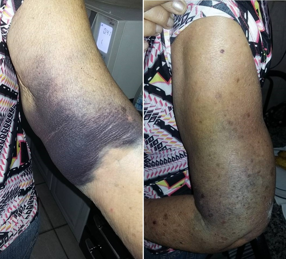 Idosa ficou com hematomas no braço após aplicação de vacina em São Vicente (SP) (Foto: Arquivo Pessoal)