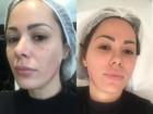 Ju Isen faz bioplastia no rosto para o carnaval: 'Gastei R$ 50 mil'