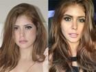 Amanda Gontijo faz cirurgia para diminuir bochechas: 'Bem tranquila'