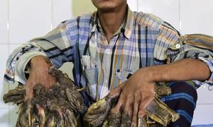 Hospital de Bangladesh se prepara para operar 'homem-árvore'