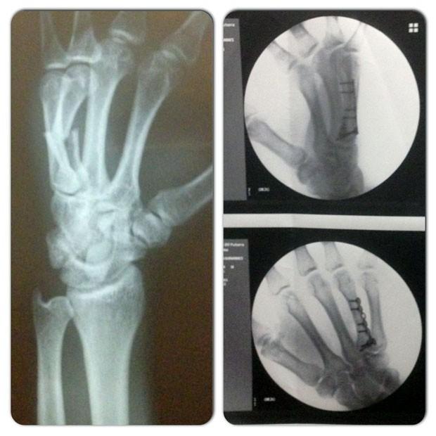 Viscardi TUF Brasil 2 mão quebrada (Foto: Arquivo Pessoal)