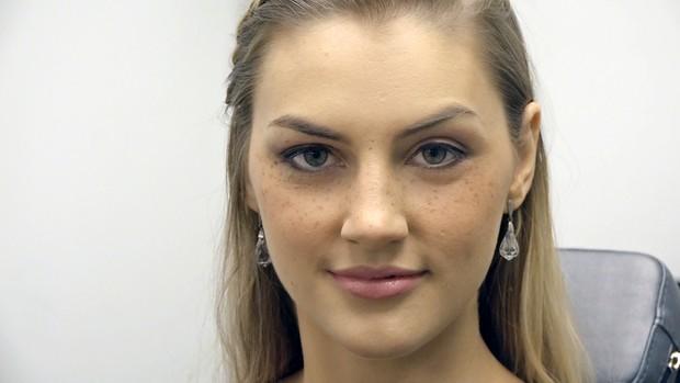 A remoção de pigmentary senil nota em uma cara