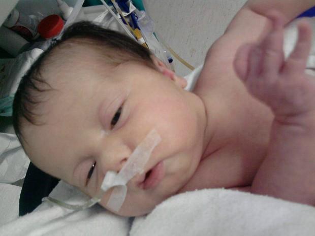 Sofia, de dois meses, foi diagonosticada com síndrome de Berdon (Foto: Divulgação / Campanha 'Ajude a Sofia')