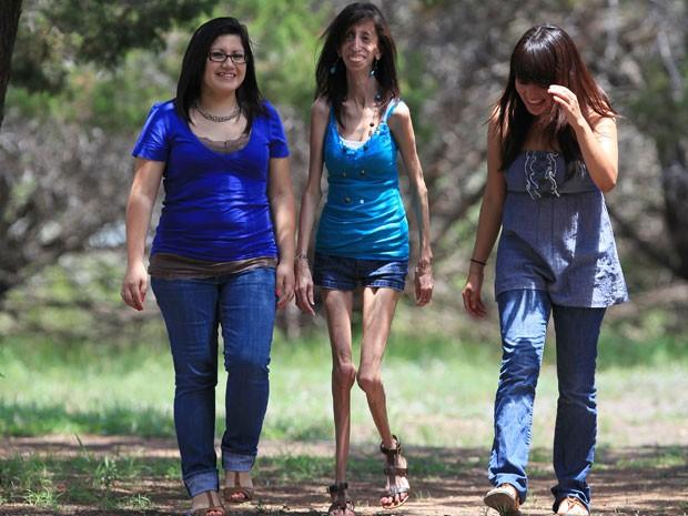 Lizzie tem 21 anos e nunca pesou mais de 30 quilos. Apesar de ter um sistema imunológico mais frágil, é saudável e leva uma vida praticamente normal (Foto: James Ambler / Barcroft USA / Getty Images)