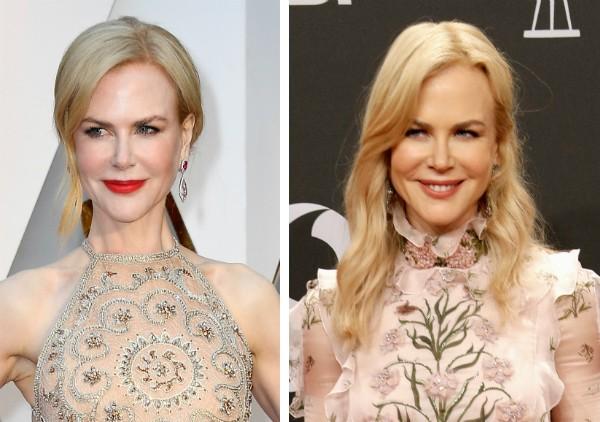 A atriz Nicole Kidman após as supostas aplicações de botox (Foto: Getty Images)