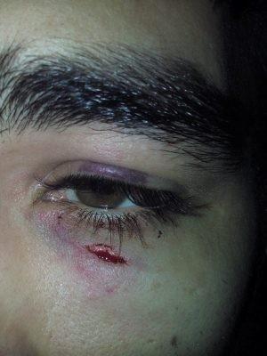 Paciente ficou ferido após médico ter sido molhado em Mongaguá (Foto: Rodrigo Rodrigues / Arquivo Pessoal)