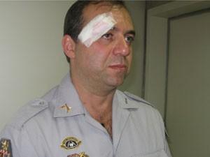 Capitão da PM fica ferido em manifestação na Câmara de SP  (Foto: Roney Domingos/ G!)
