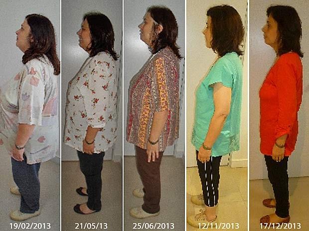 Sequência mostra médica durante tratamento para perda de peso ao longo de quase um ano (Foto: Cira Costa/Arquivo Pessoal)