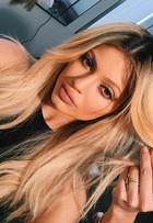 Kylie Jenner admite ter tido problemas com preenchimento nos lábios
