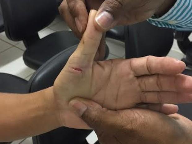 Mulher foi agredida pelo marido por causa de um defeito na máquina de lavar (Foto: Divulgação / CGJMA)