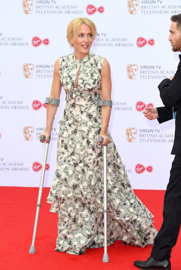 A atriz Gillian Anderson de muletas durante o BAFTA TV Awards (Foto: Gillian Anderson)