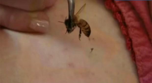 Margaret chega a carregar os insetos na bolsa para dar ferroadas em si mesma durante o dia (Foto: Reprodução)