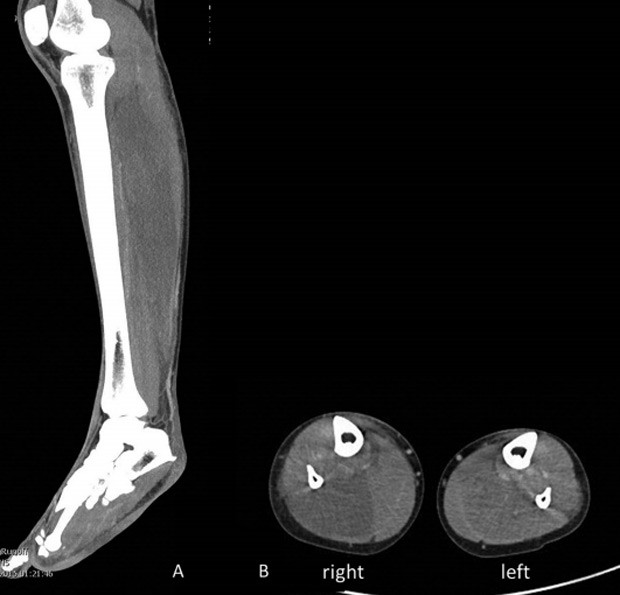 Tomografia computadorizada da perna direita da paciente mostra inchaço dos músculos  (Foto: Reprodução/J Neurol Neurosurg Psychiatry)