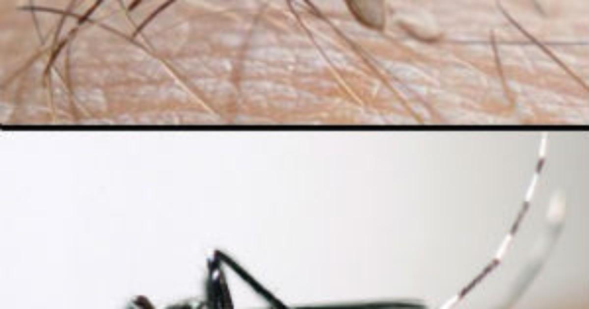 Dois casos suspeitos de febre chikungunya são registrados no AM - Globo.com