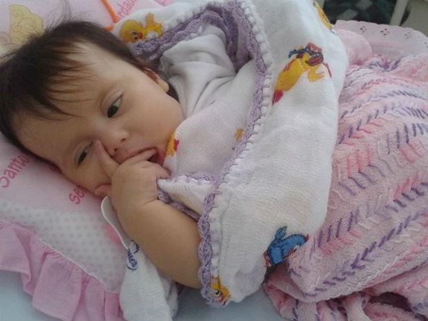Menina de 4 meses sofre com síndrome de Berdon  (Foto:  Divulgação/Campanha Ajude a Sofia)