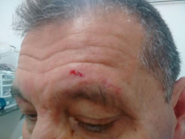 Modesto ficou com ferimentos na testa após confusão (Foto: Arquivo Pessoal)