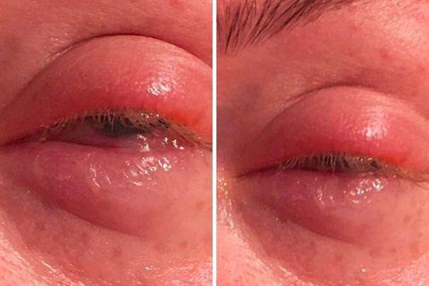Olhos infeccionados pela maquiagem (Foto: Daily Mail)