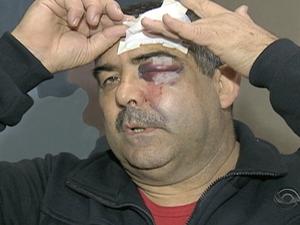 Sargento atingido por pedra em Porto Alegre (Foto: Reprodução/RBS TV)