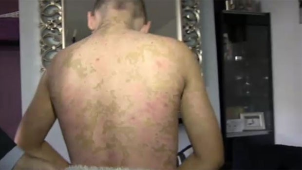 As costas de Calvin também ficaram com marcas (Foto: BBC)